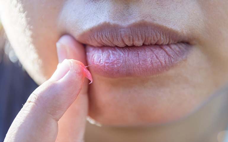 Cracked Lips? Yes, Cannabis Can Help With That