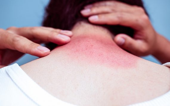If You're Experiencing Skin Inflammation, CBD Could Help